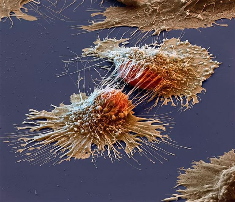 ćelije-raka