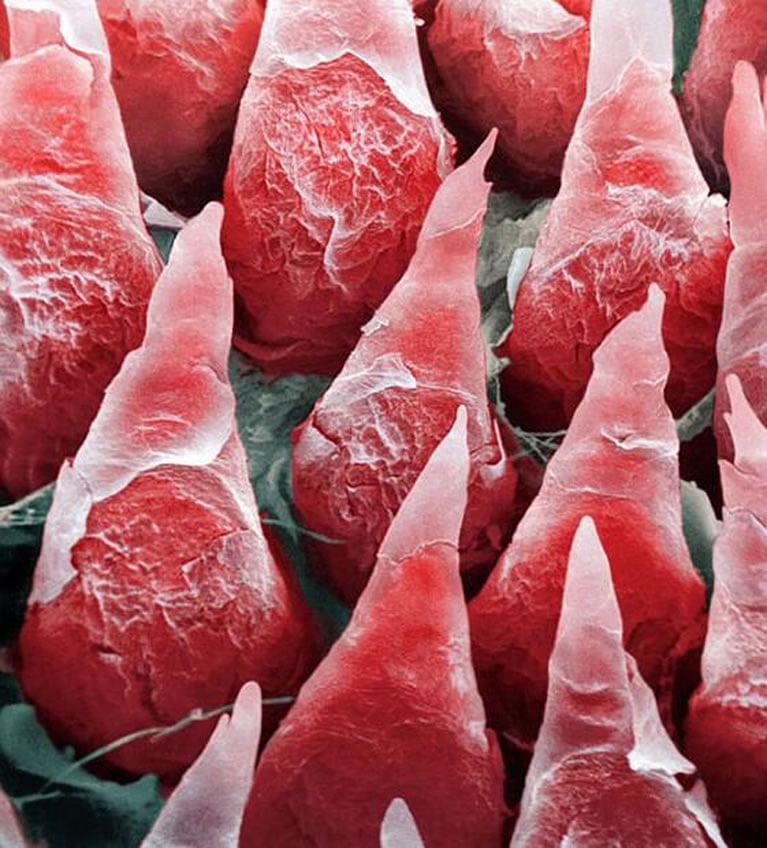ljudski-jezik-pod-mikroskopom